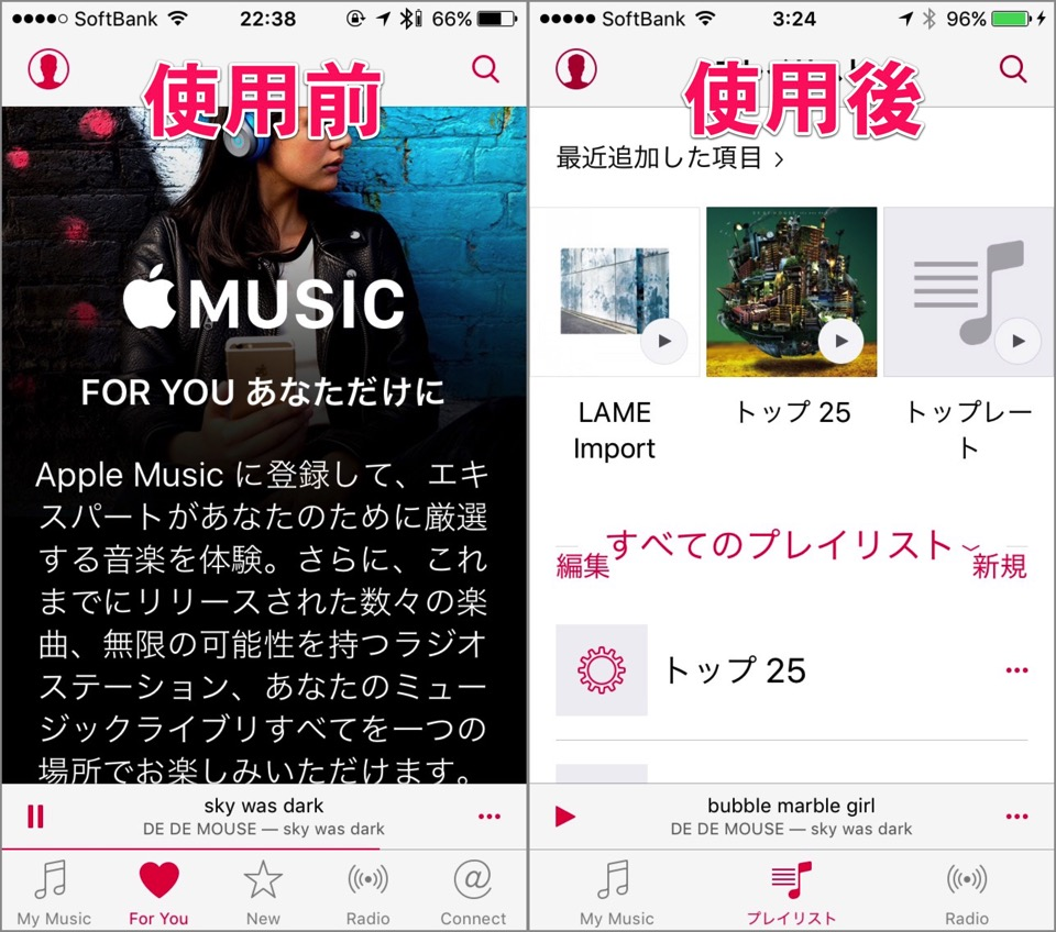 Hide the apple music to make music app be easier to use 00004